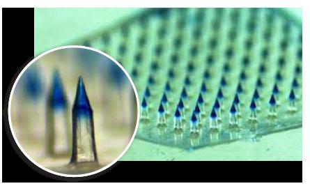 microneedle array